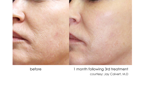 DermaSweep before and after