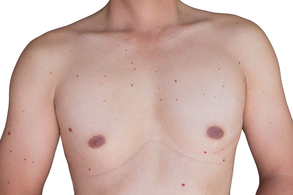 red spots on your body