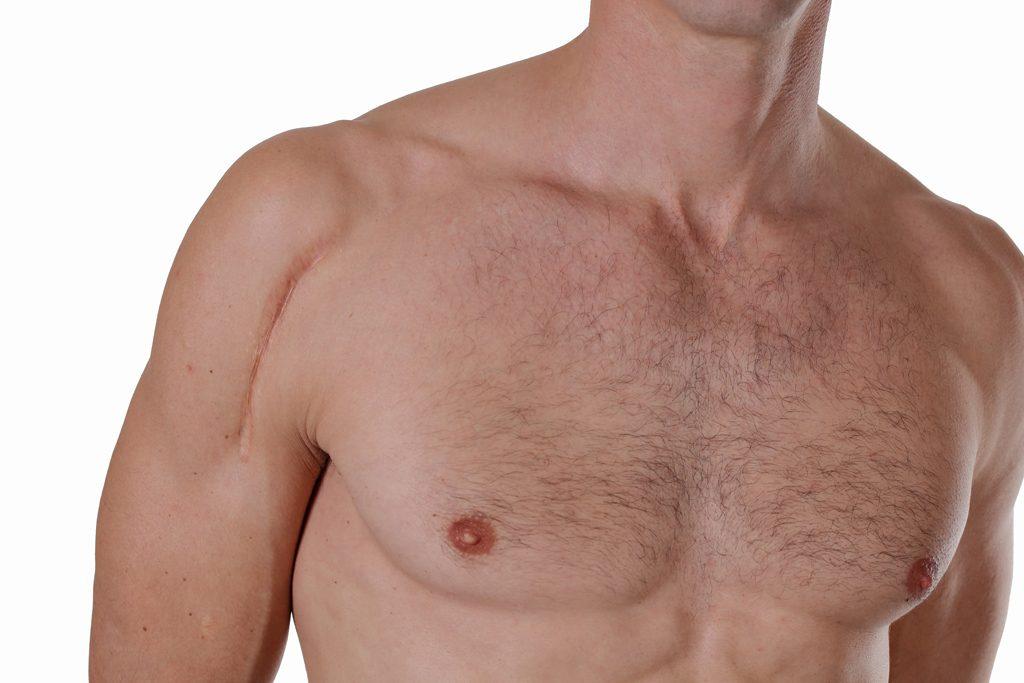 mens skin treatments