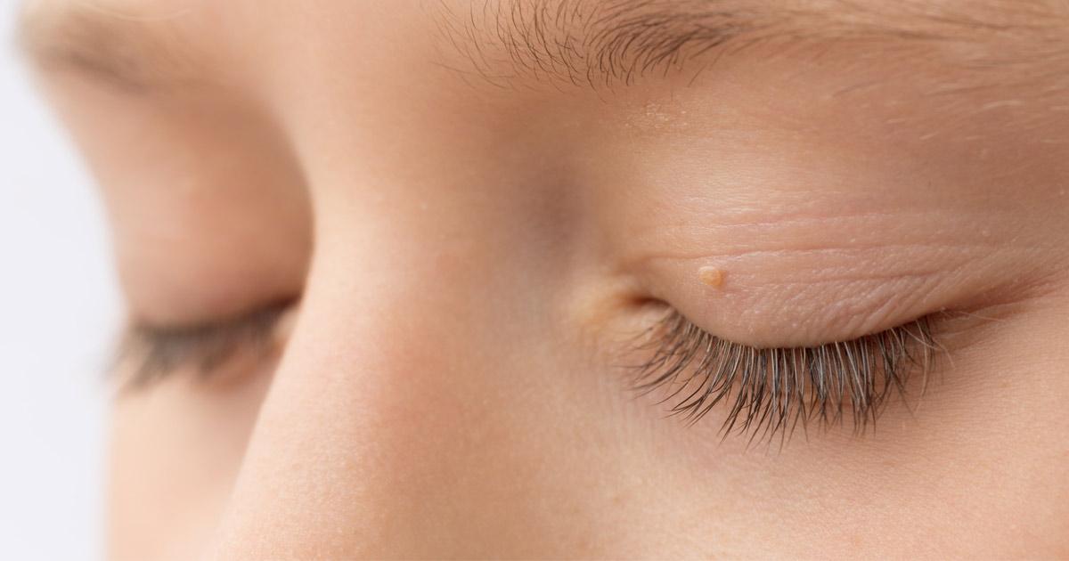 skin tag an an eyelid